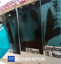Se reportan 309 casos confirmados de TBC en Áncash 13