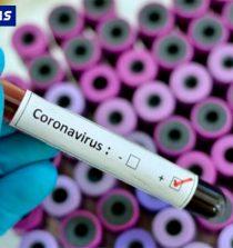 Áncash: Descartan COVID-19 en 103 muestras